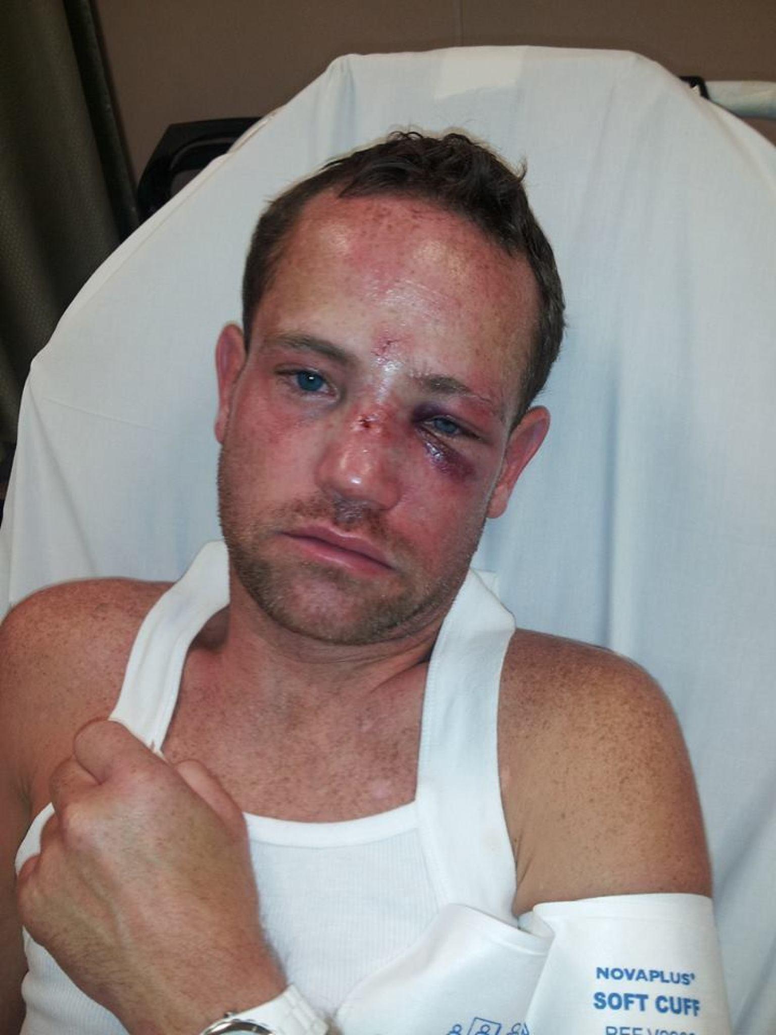 Gay men beat violence assault photos 808